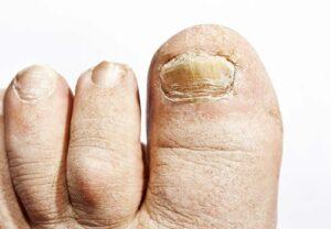rippled nails