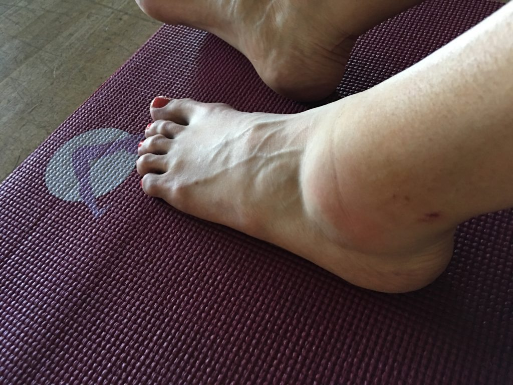 Robyn's sprained ankle