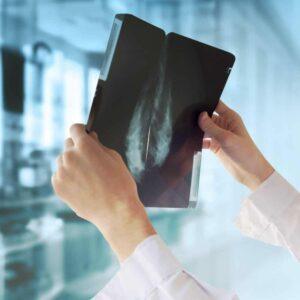 "Photo of xray image being held up to light from ""6 Things Every Woman Should Know About Breast Cancer"" By Green Smoothie Girl"