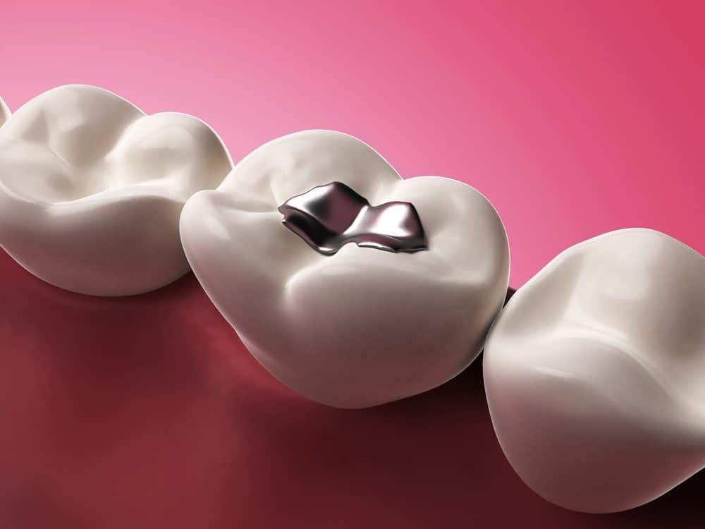 Are Amalgam Fillings Safe? A Biological Dentist Weighs In