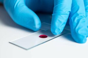 10 Amazing Treatments By Europe's Biologicall Medicine: Live Blood Analysis - A drop of blood on a slide