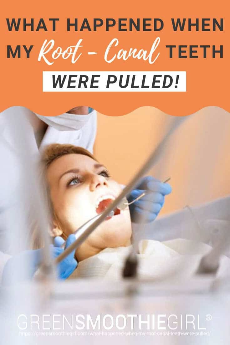 "Photo of woman with mouth open and dentist with surgical tools with post's text from ""What Happened When My Root-Canal Teeth Were Pulled"" by Green Smoothie Girl"