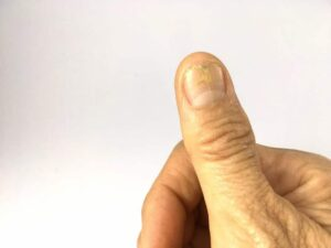 "Photo of cracked thumb nail from ""Ridges, Bumps, Or White Spots In Your Fingernails? What Your Nails Say About Your Health"" at Green Smoothie Girl."