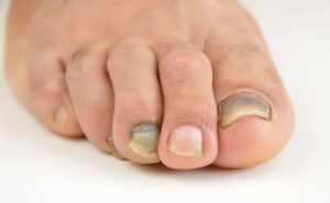 gross toe nails