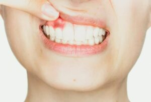 Why Your Periodontal Disease Should Be Treated Now | Green Smoothie Girl