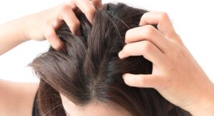 "Photograph of a head full of dark hair being scratched by fingernails, from ""12 Proven Health Benefits of Aloe Vera"" at Green Smoothie Girl."