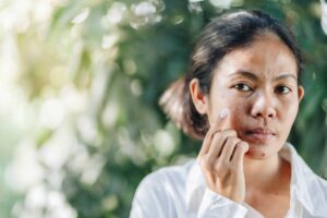 "Photograph of a young woman examining the acne on her face, from ""Health Benefits of Sulfur, and Why You're Probably Deficient"" at Green Smoothie Girl"