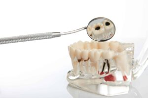 Photo of a model of teeth with gum disease, from