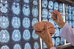 """Photograph of a surgeon holding a model of a human brain against a background of brain MRI images, from """"Vitamin C: Ascorbic Acid Can Hurt Your Health"""" at Green Smoothie Girl."""