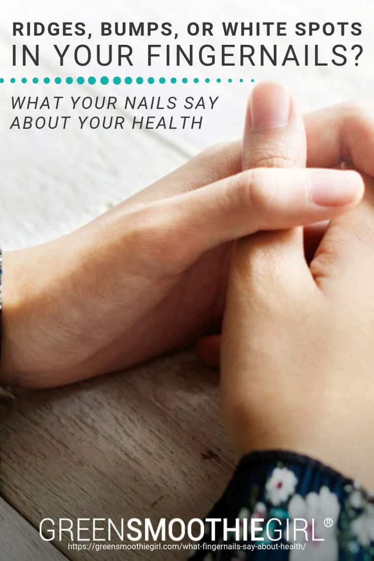 Ridges, Bumps, Or White Spots In Your Fingernails? What Your Nails Say About Your Health