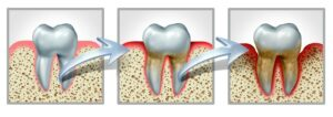 Graphic of tooth and gums turning dirty and diseased from