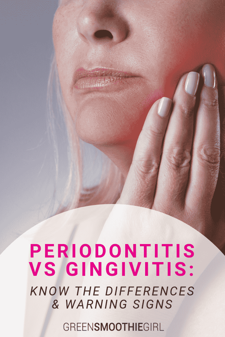 Periodontitis vs Gingivitis: Know the Differences & Warning Signs