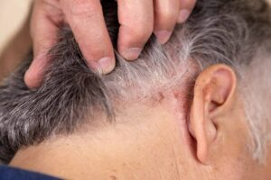 "Photo of man with dandruff from ""Surprising (And Proven) Uses and Benefits of Castor Oil"" at Green Smoothie Girl."