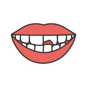 "Illustration of broken or chipped tooth in a smile from ""Teeth Hurt? When To See A Dentist, Or Use Home Remedies"" by Green Smoothie Girl"