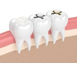 Graphic of three different types of teeth filling in teeth from