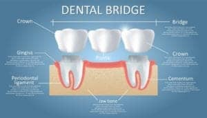 "Graphic of a dental bridge and its parts from ""Why Root Canals Fail, and What to Do About It"" by Green Smoothie Girl"