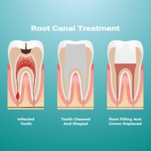 "Illustration of what occurs during a Root Canal procedure from ""Why Root Canals Fail, and What to Do About It"" by Green Smoothie Girl"