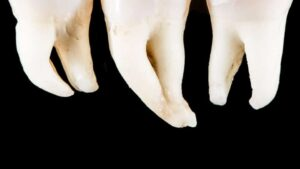 "Photo of three teeth with curved roots on black background from ""Why Root Canals Fail, and What to Do About It"" by Green Smoothie Girl"